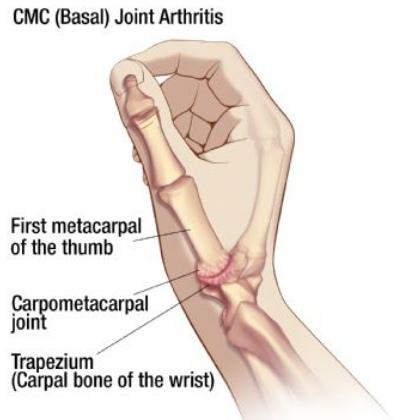 osteoarthritis of thumb