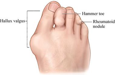 rheumatoid arthritis foot