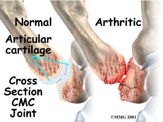 cmc joint arthritis