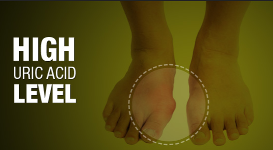 how to lower high uric acid levels