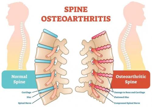 Cause of Back Arthritis