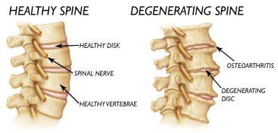 degenerative arthritis symptoms