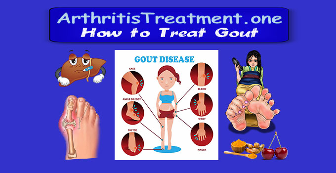 Treatment for Gout